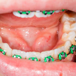 Orthodontist Kansas City